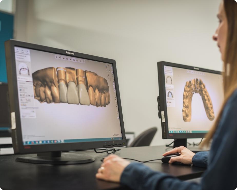 Techniques de prothèses dentaires